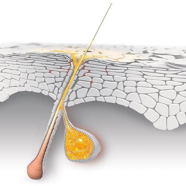 Hormones stimulate excess sebum production which can cause acne